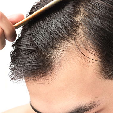 trapianto-capelli-fue-clinic-biorigeneral-donato-zizi
