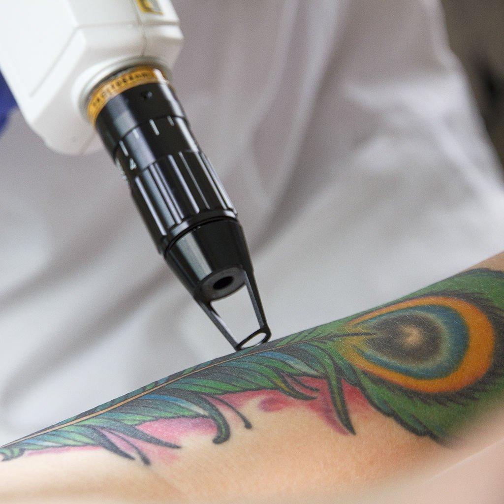rimozione,tatuaggi abruzzo